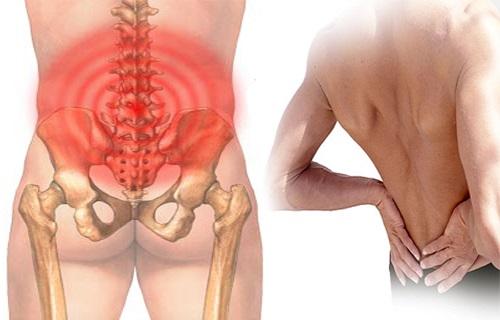 Kết quả hình ảnh cho đau xương cụt ở nam giới